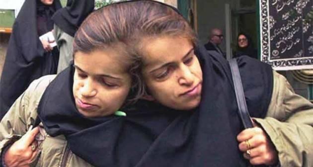 AccaddeOggi  #6luglio 2003-Intervento chirurgico di separazione delle sorelle siamesi Ladan e Laleh Bijani
