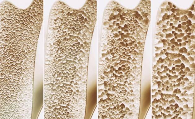 Lecco  Osteoporosi, una malattia da conoscere e da non sottovalutare