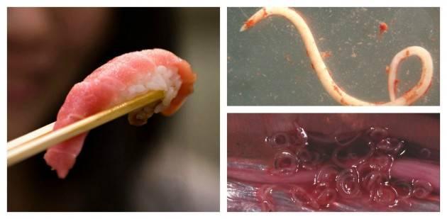 quanto comuni parassiti dal sushi