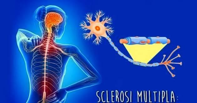 La sclerosi multipla non aumenta il rischio di ammalarsi