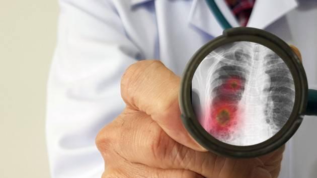 CORONAVIRUS: PIZZUL E GIRELLI (PD),L'incremento delle polmoniti in inverno avrebbe dovuto fa muovere la regione