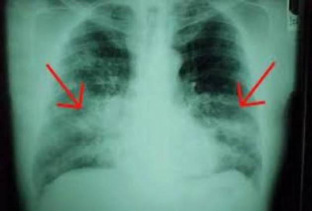 Conseguenze del Covid: fibrosi polmonare nei casi gravi, chi è a rischio?