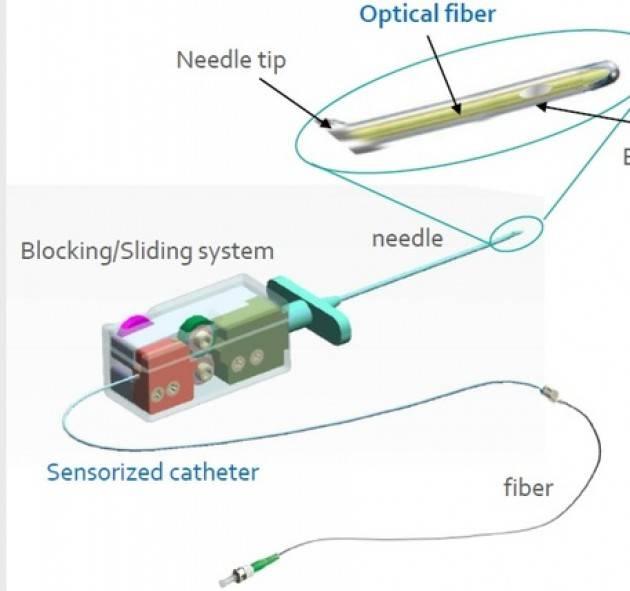 Fibra ottica per anestesia epidurale