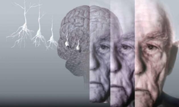 ALZHEIMER: PRESERVARE LA MEMORIA CON LA STIMOLAZIONE MAGNETICA