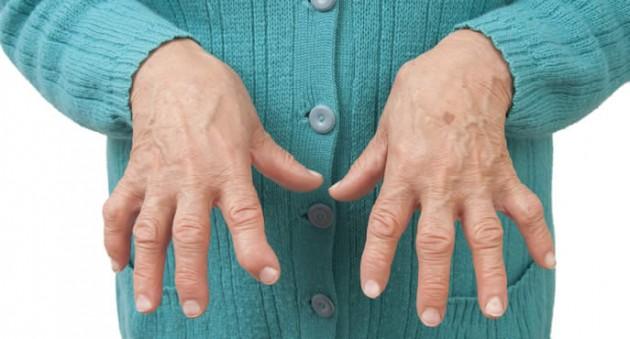 Chi soffre di artrite dovrebbe vaccinarsi?